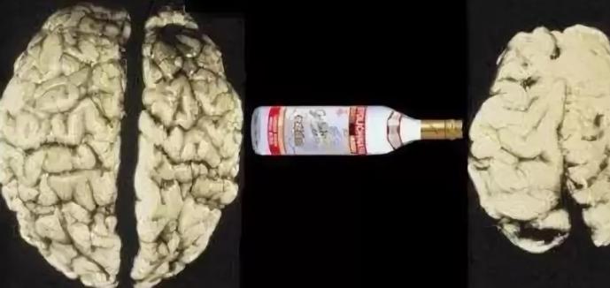 Как восстановить мозг после запоя