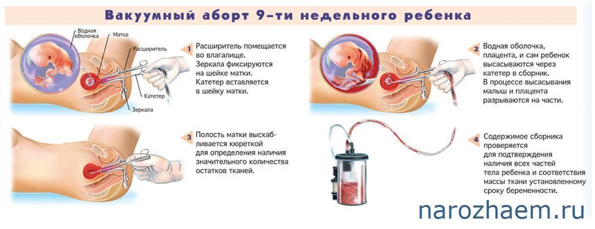 Можно ли алкоголь после биопсии шейки матки — симптомы