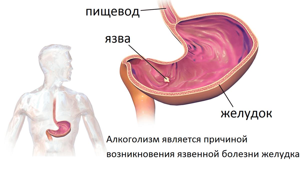 Почему нельзя алкоголь при язве желудка и кишечника
