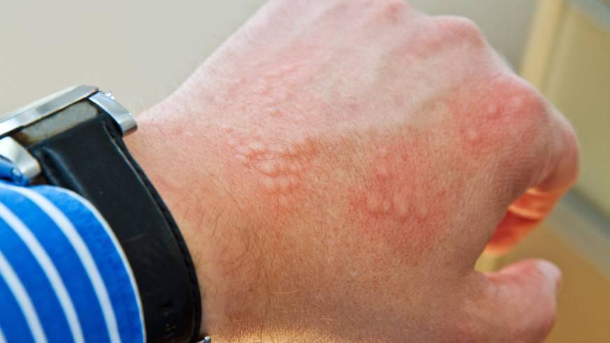 Солнечная крапивница: симптомы и лечение, 7 фото с описанием причин