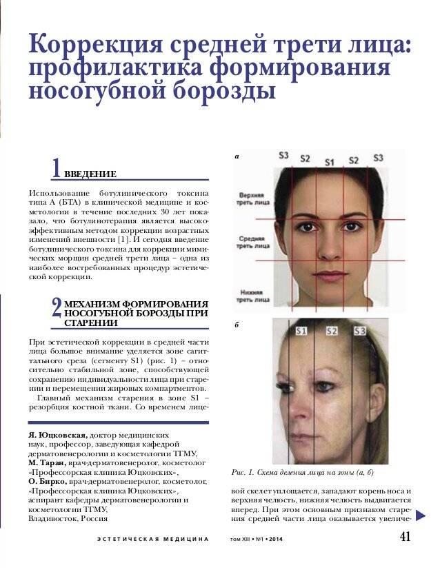 Филлеры в косметологии — вся информация