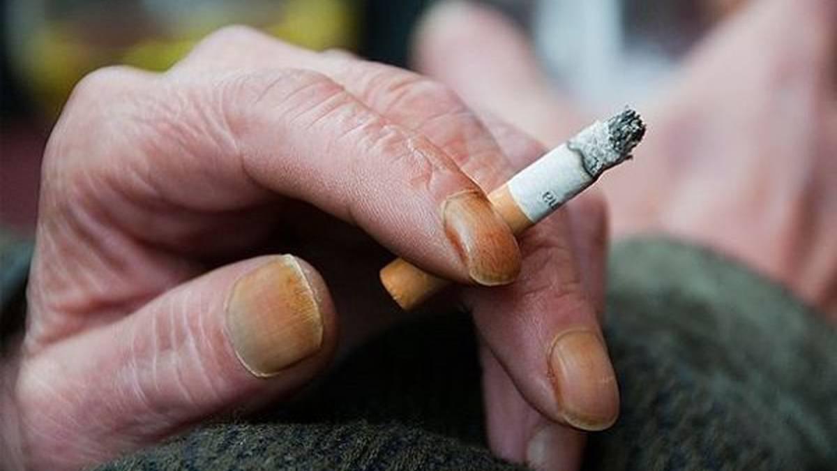 Прыщи от курения: могут ли появиться или наоборот проходят высыпания на лице и теле, если бросить курить, влияют ли сигареты на несовершенства кожи