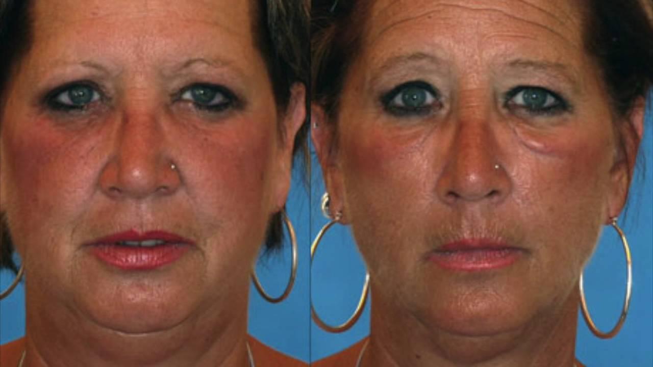Как курение влияет на женскую внешность   медужастики