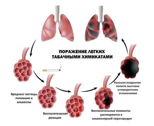 Чем обусловлено появление болей в легких при курении?