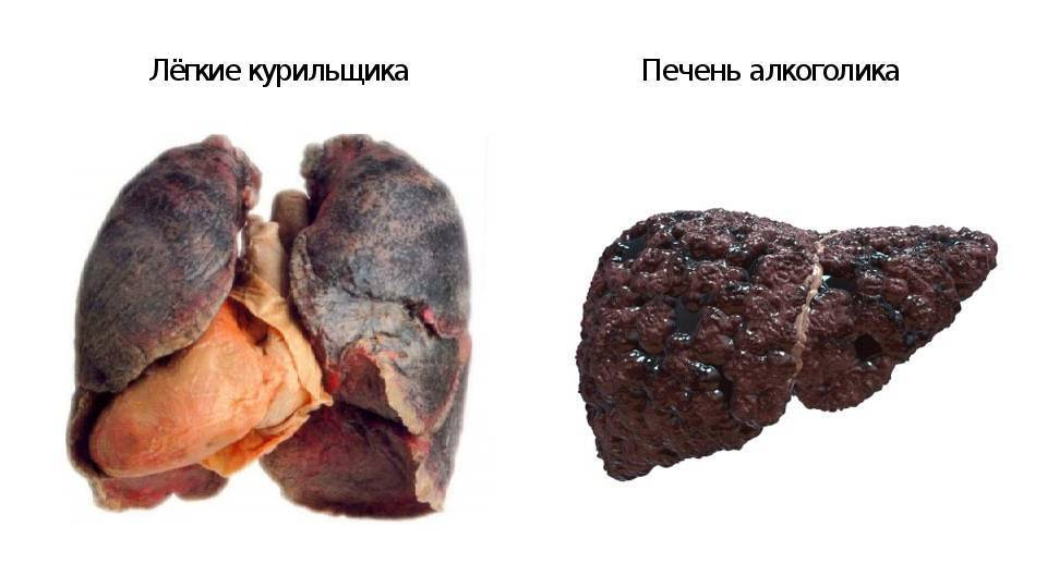 Болит сердце от курения — какие процессы провоцируют боль, негативные последствия | dlja-pohudenija.ru