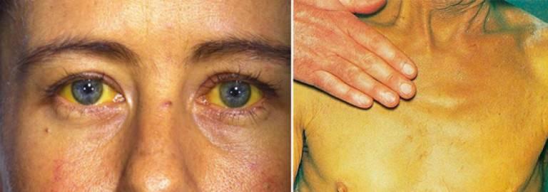 Заболевания печени: признаки, симптомы и виды болезней печени