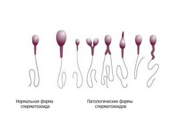 Можно ли кушать перед сдачей спермограммы - информация, которая удивляет