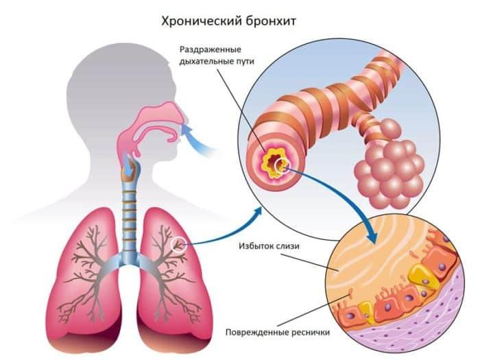 Можно ли курить при кашле и бронхите