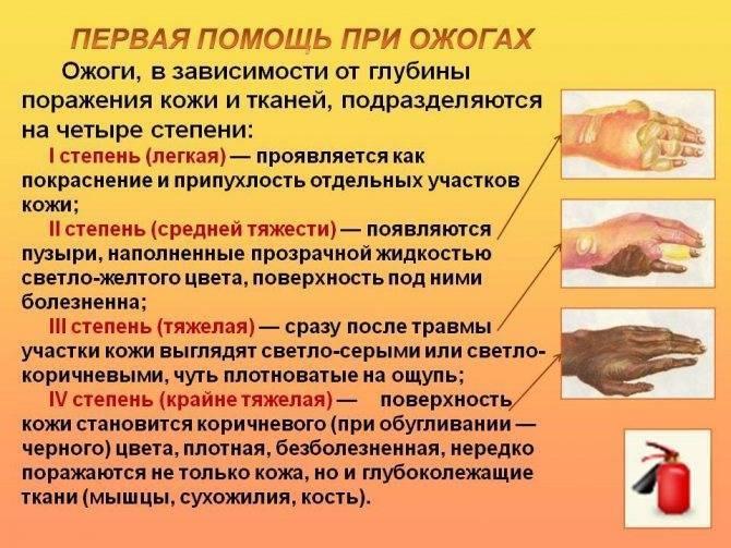 Ожог кожи лица и тела от сварки: как и чем лечить, чего делать нельзя