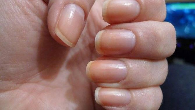 Желтеет палец на руке у курильщика: причины, методы борьбы и профилактики