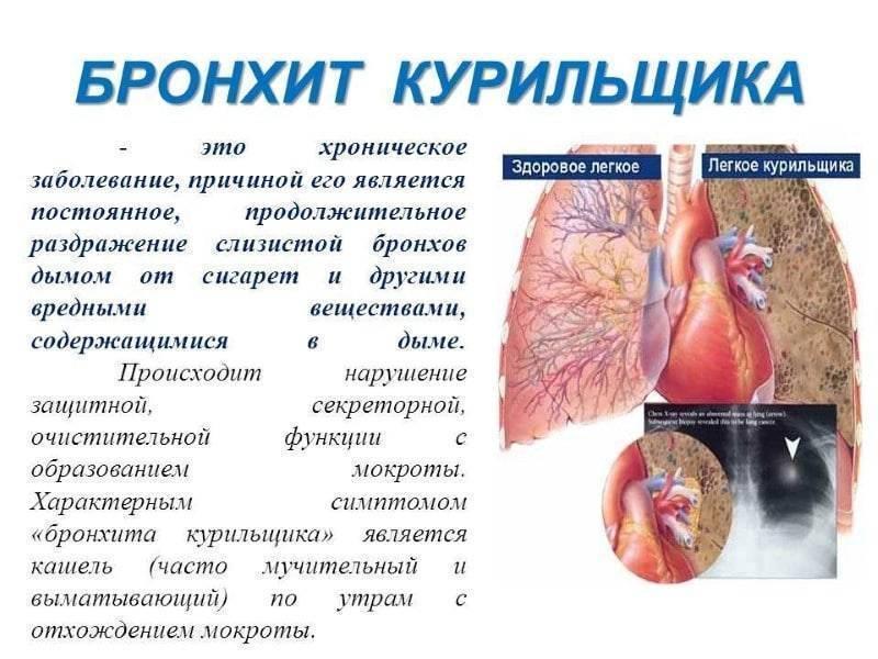 Кашель от электронной сигареты