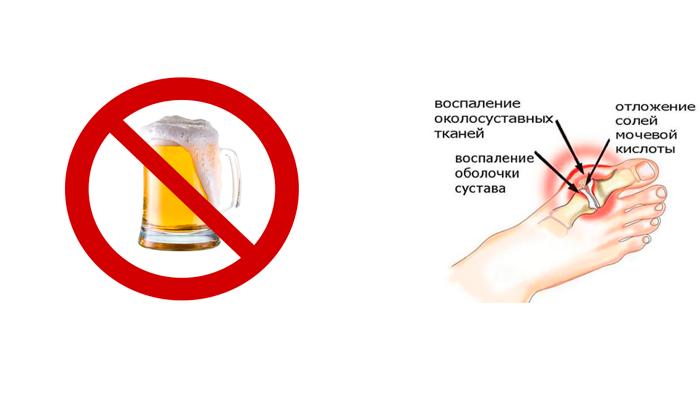 Алкоголь при подагре – можно ли употреблять выпивку при заболевании?