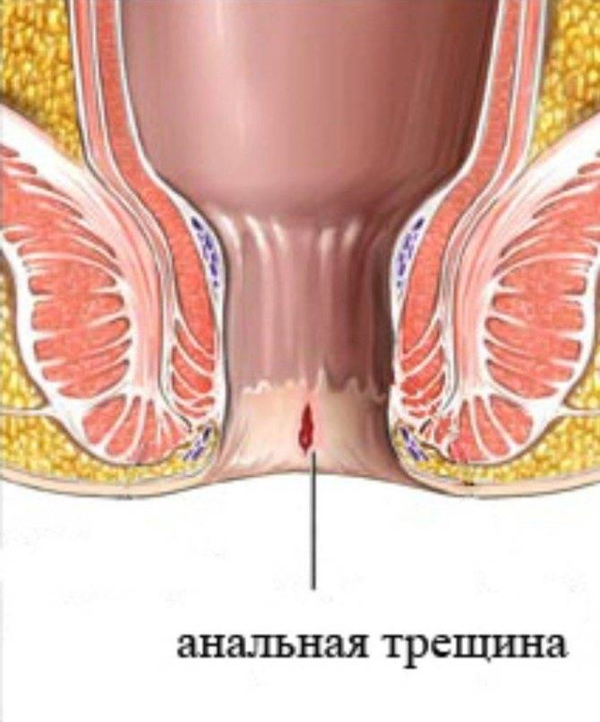 Кровотечение из заднего прохода после употребления алкоголя — симптоматика болезней