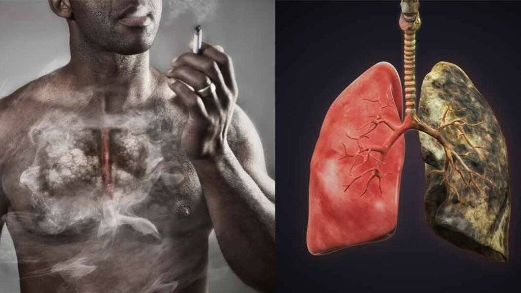 Как курение влияет на работу печени: последствия