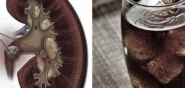 Можно ли пить пиво при камнях в почках - пищеварительная система