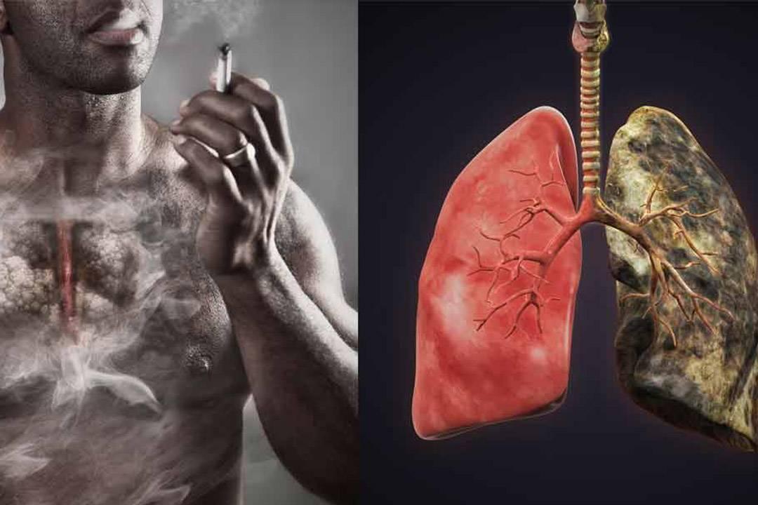 Можно ли курить редко? - отрицательные стороны