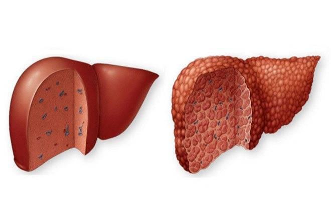 Цирроз печени – первые признаки, симптомы, причины и лечение цирроза печени - здоровье человека, симптомы и лечение заболеваний