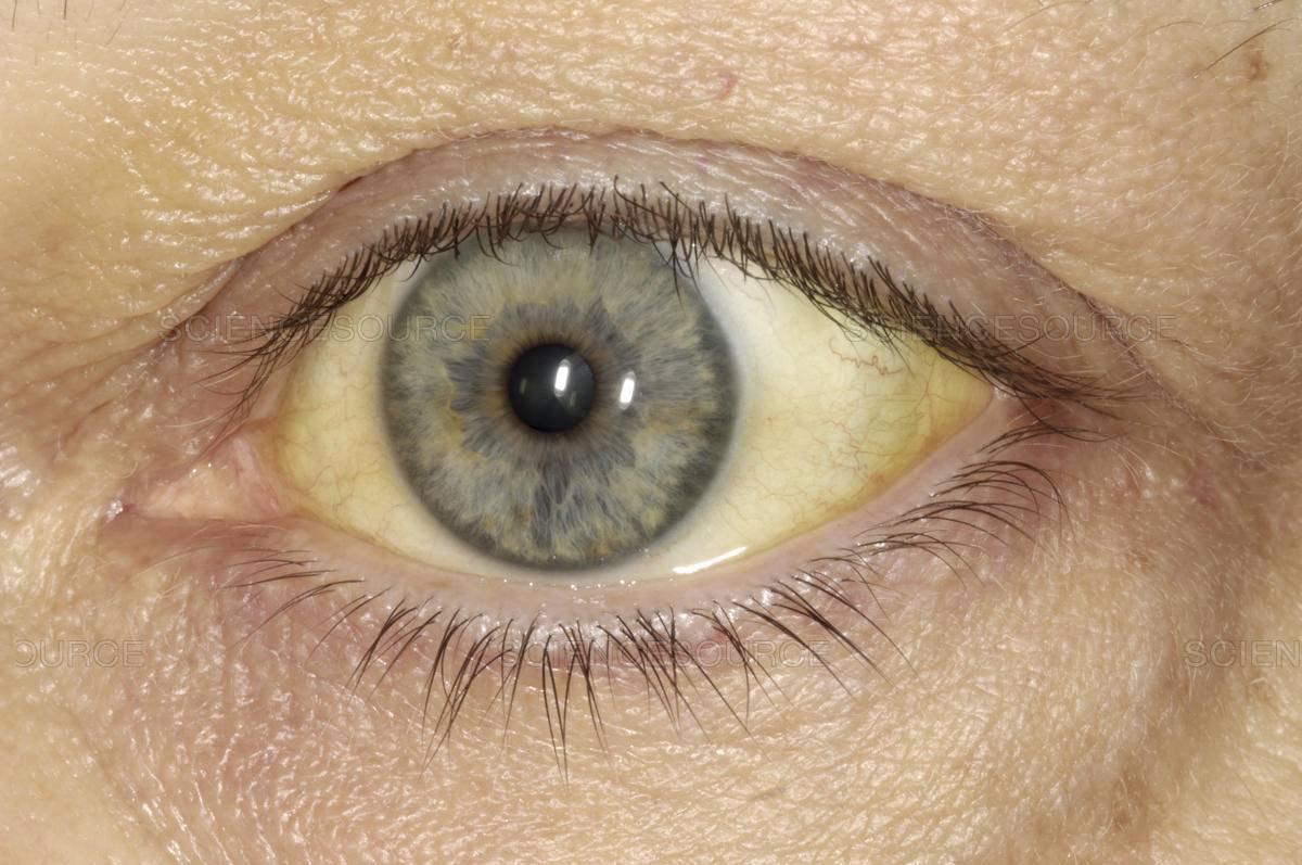 Желтые глаза у человека - причины, симптомы и лечение