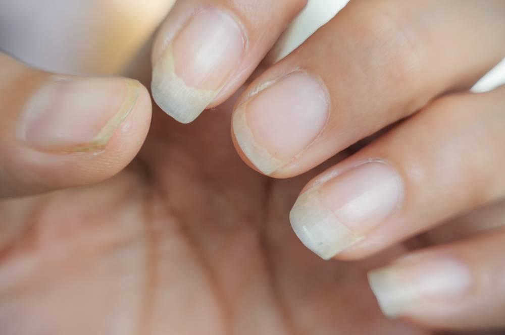 Желтые пальцы от сигарет: как убрать никотиновые пятна? 5 способов, как очистить эту желтизну в домашних условиях, и почему желтеют пальцы и ногти на руках у курильщика