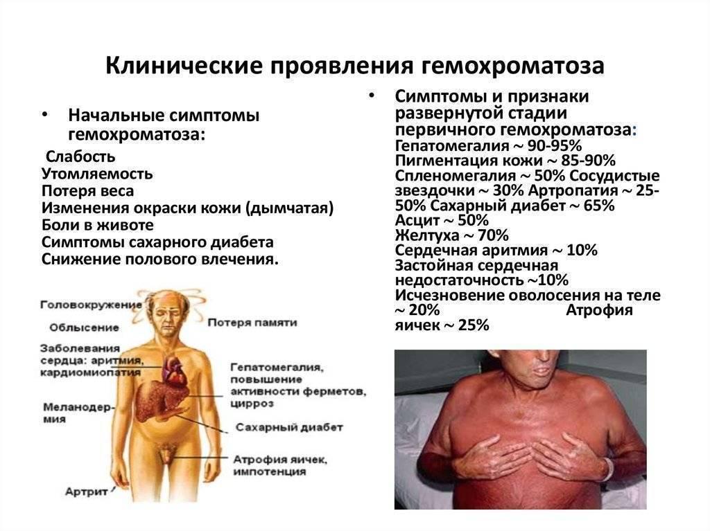 Печеночная недостаточность, симптомы у женщин и мужчин