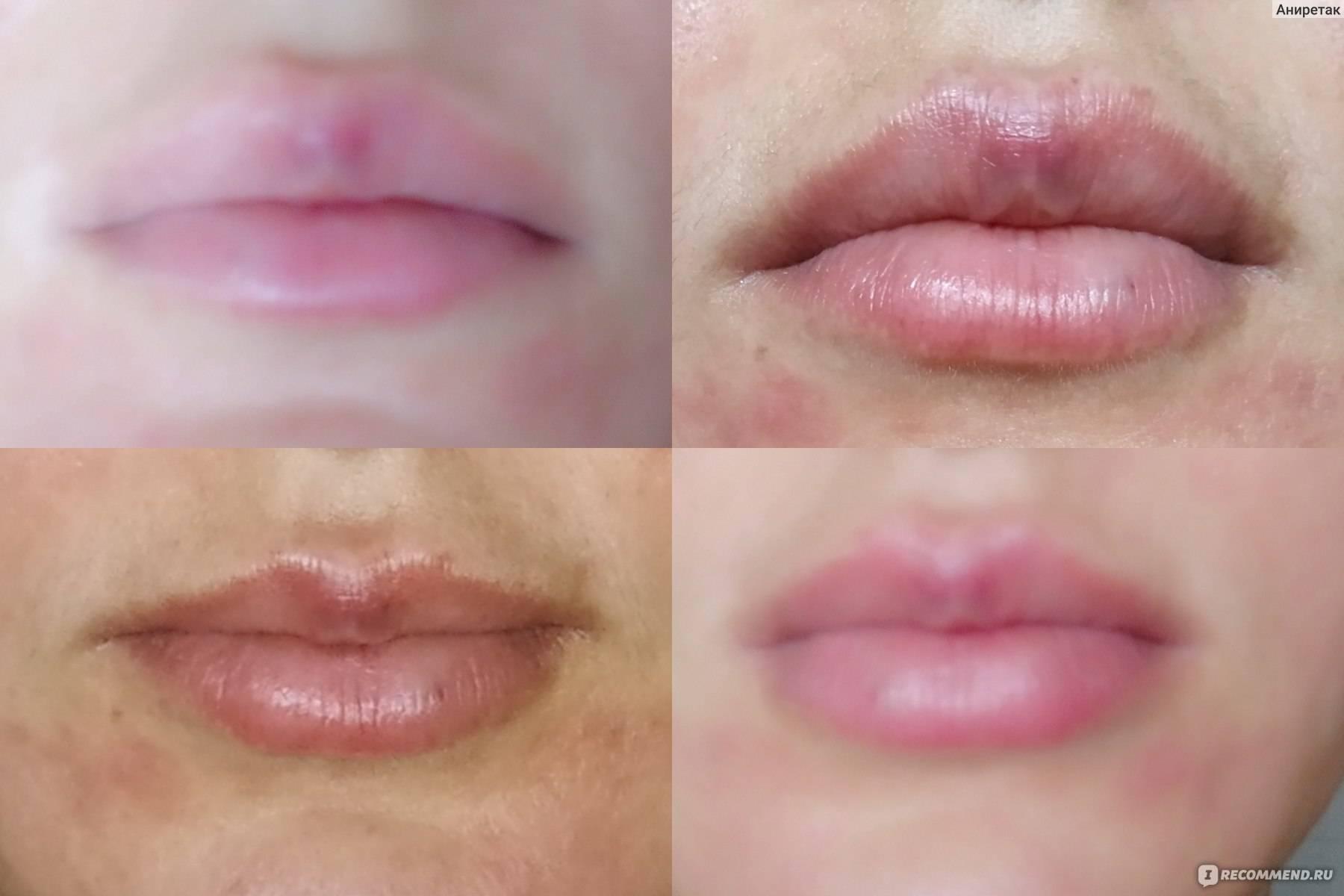 Почему нельзя пить горячее после увеличения губ | wine & water