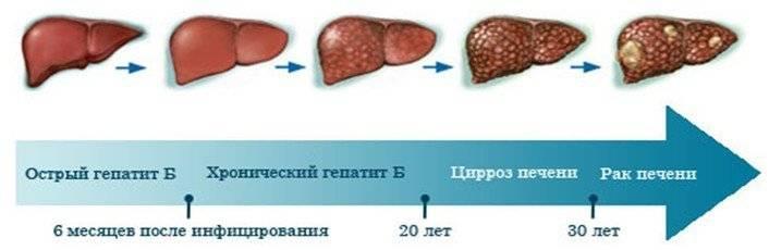 Признаки последней стадии цирроза печени