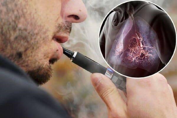 Электронные сигареты и беременность: да или нет. узнаем можно ли курить электронные сигареты беременным