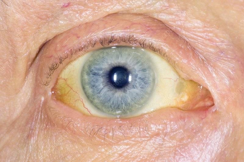 Почему желтеют глаза и кожа. почему проявляется желтый цвет кожи?