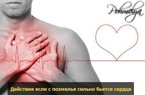 Если учащенное сердцебиение с похмелья