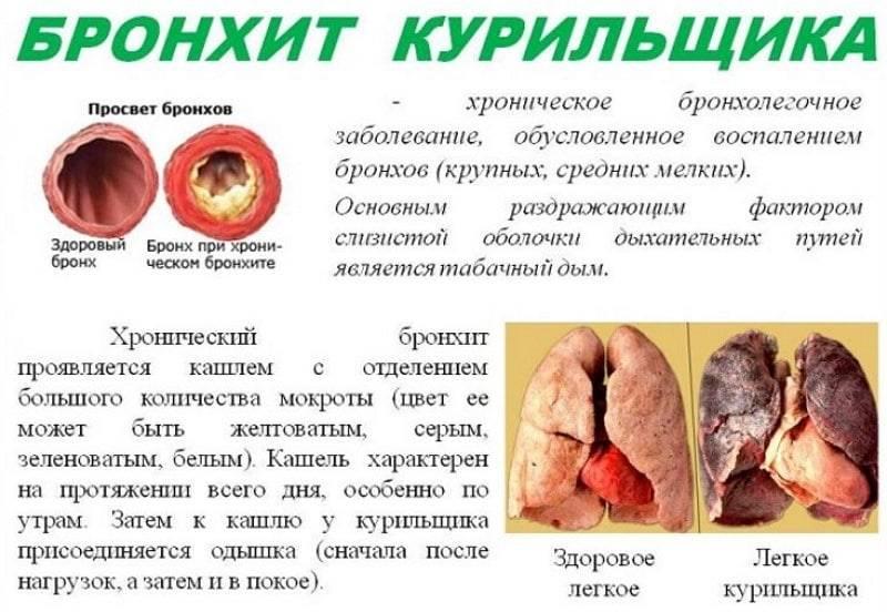 Бросил курить – болит сердце