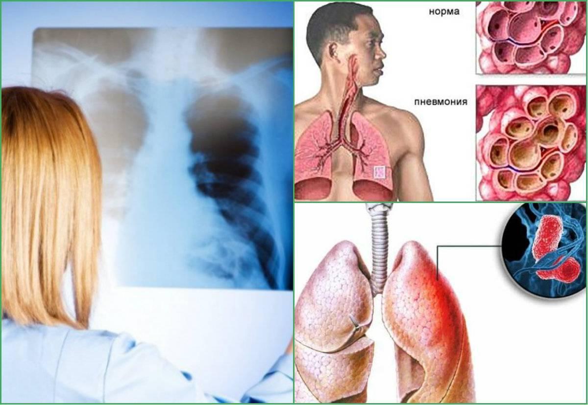 Болит сердце от курения — какие процессы провоцируют боль, негативные последствия