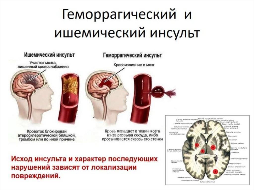 Алкоголь после инсульта: можно ли пить, употреблять спиртное, последствия, совместимость, связь, коньяк