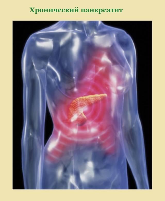 Как лечить хронический панкреатит народными средствами