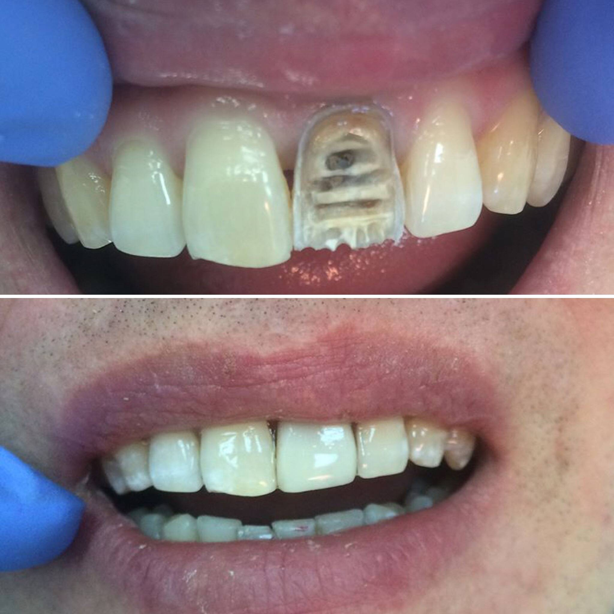 Сколько времени нельзя есть после пломбы - стоматолог