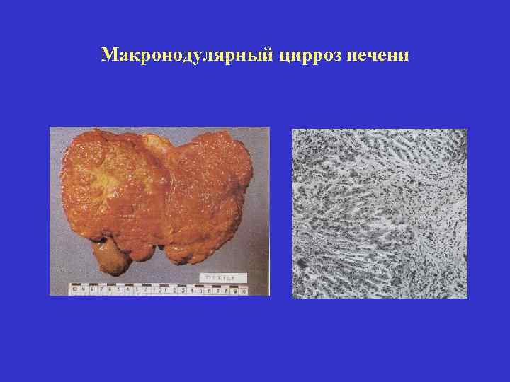 Цирроз печени – первые признаки, симптомы, причины и лечение цирроза печени