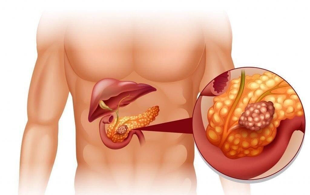 Последствия курения при воспалении поджелудочной железы