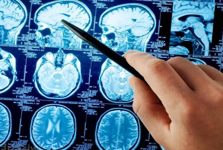 Основные причины и последствия отека головного мозга