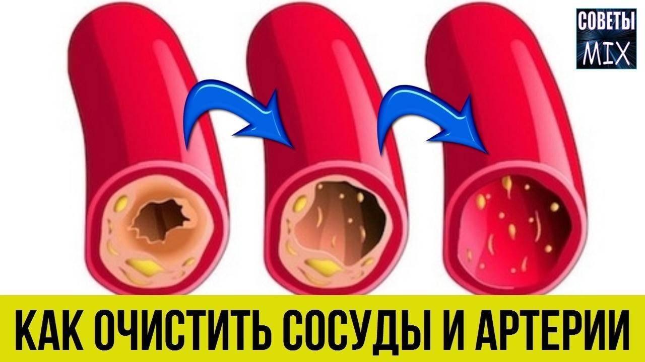 Народные средства от атеросклероза сосудов головного мозга