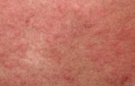Солнечная крапивница: кому грозит и как лечится