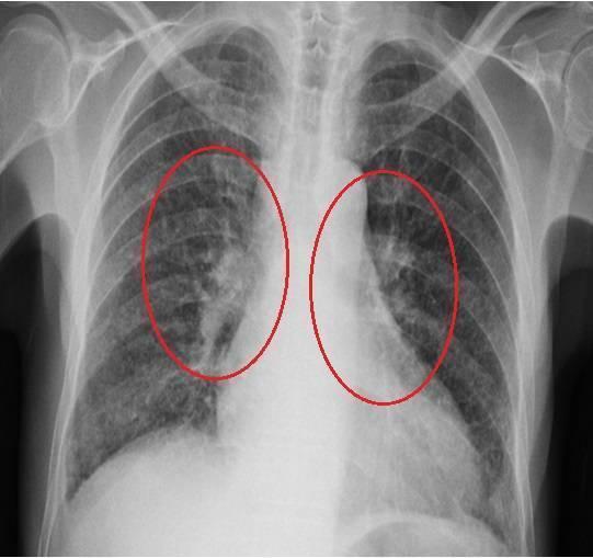 Рентген-снимки здоровых и чистых легких — что должно и не должно быть на них - все о суставах