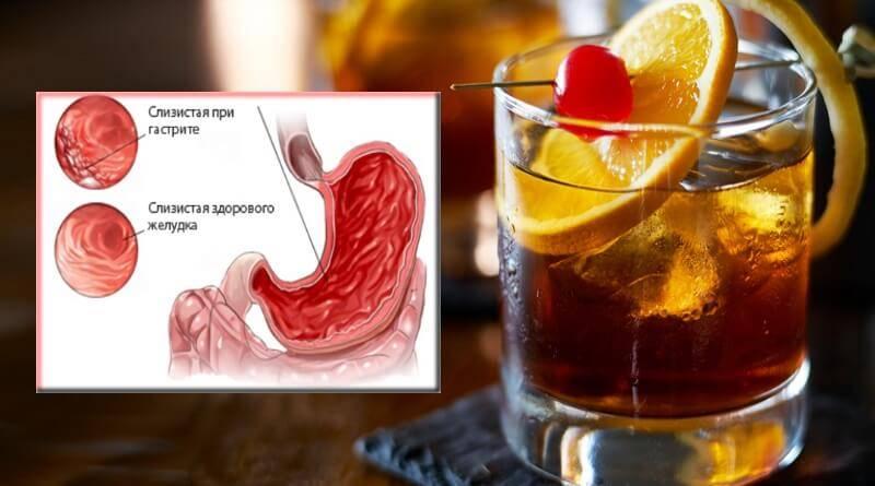 Какой можно пить алкоголь при панкреатите?