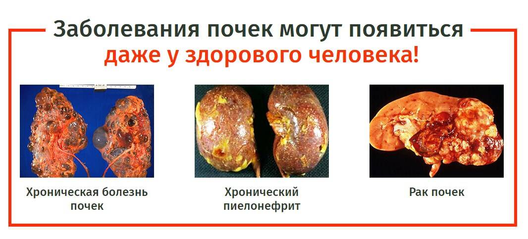 Болят почки после алкоголя - пагубное воздействие на орган, медикаментозные и народные средства лечения