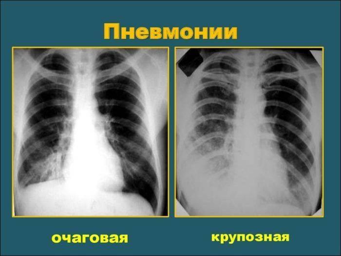 Флюорография фото здоровых легких и больных