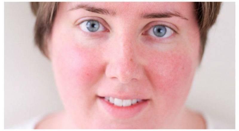 Красные пятна на лице и теле после алкоголя: причины и лечение (с фото)