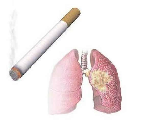 Курение при бронхите последствия