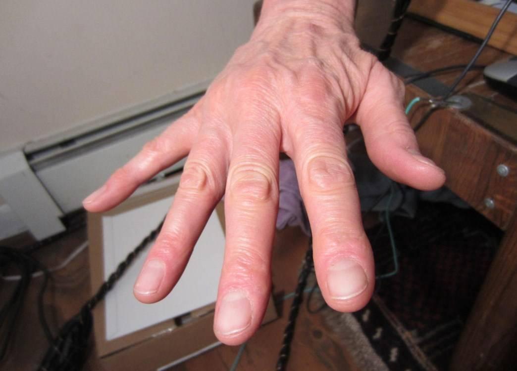 Почему трясутся руки у молодых парней и девушек: причины, симптомы, как лечить