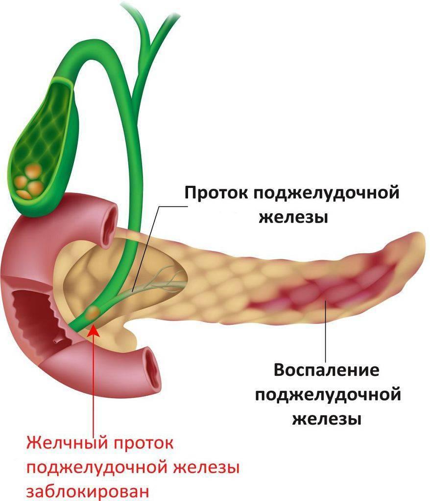 Прием панкреатина при панкреатите
