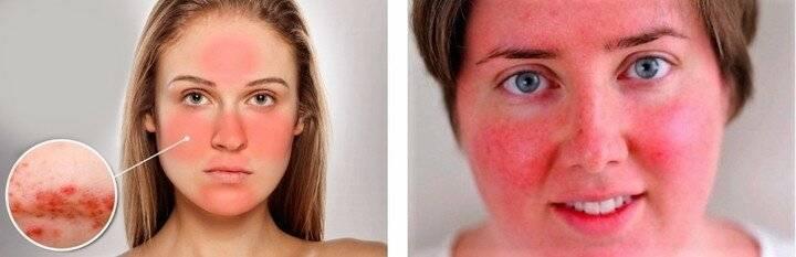 Почему краснеет лицо от алкоголя