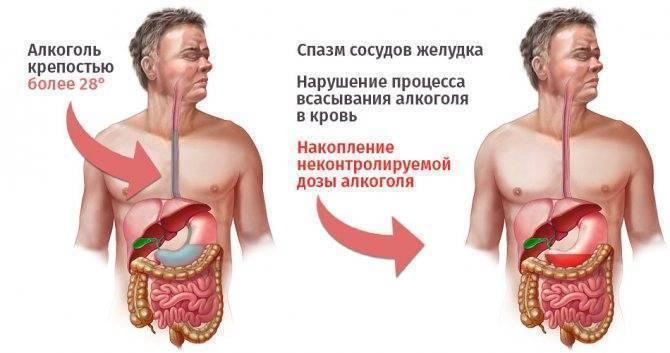 Почему после алкоголя болит желудок?