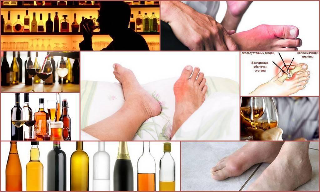 Какой можно пить алкоголь при подагре и как совмещать?
